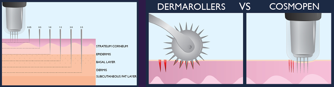 Microneedling & PRP In Orlando