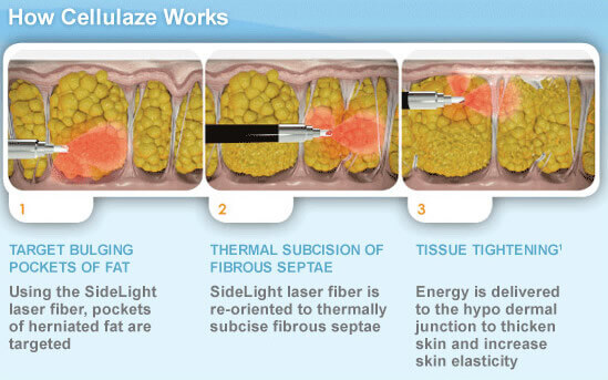 How Cellulaze™ Works to Reduce Cellulite