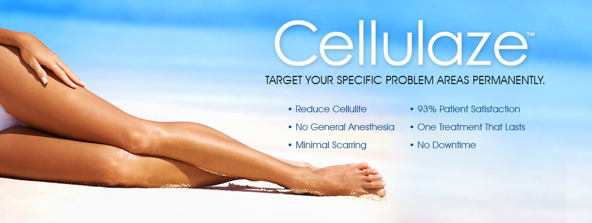 Cellulaze™ target your specific cellulite problem areas permanently. Reduce cellulite. No general anesthesia. Minimal scarring. 93% patient satisfaction. One treatment that lasts. No downtime.