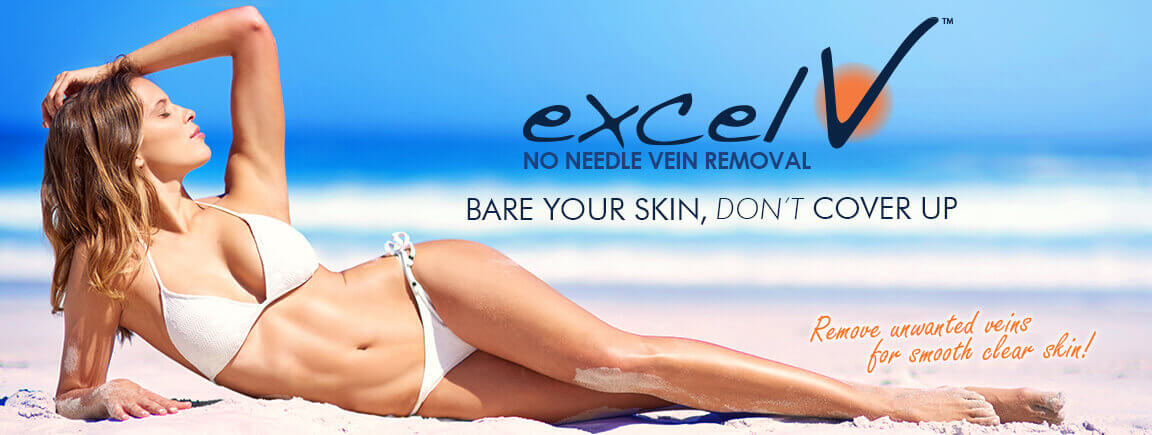 Excel V™ Laser Vein Treatment