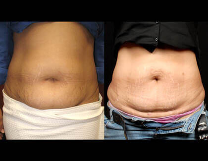 SmatLipo Before And After